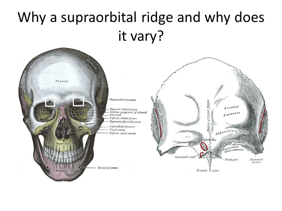 Supraorbital Ridge Large Related Keywords - Supraorbital ...