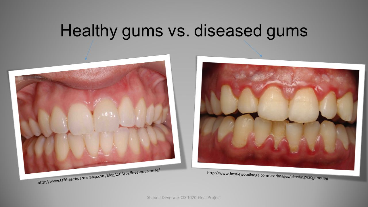 Healthy Gums Vs Gingivitis | www.imgkid.com - The Image ...