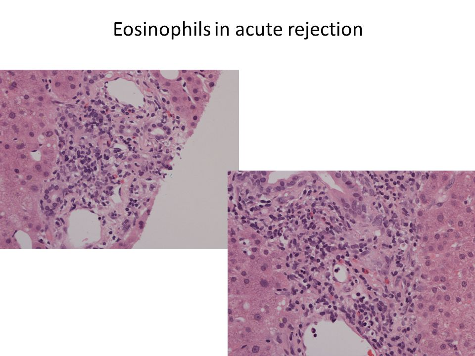 Eosinophils in acute rejection