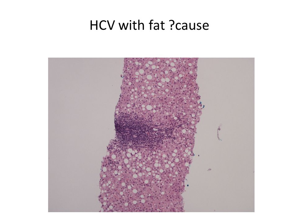HCV with fat cause Fat ASH/NASH/HCV/methotrex from psoriasis
