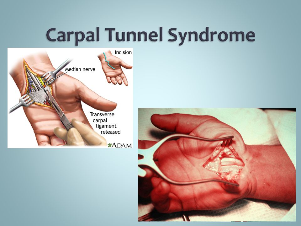 the causes symptoms and treatment of the carpal tunnel syndrome Carpal tunnel syndrome starts with a mild tingling in the fingers and is often  caused by repetitive stress at work dr andrew chin from the department of hand .