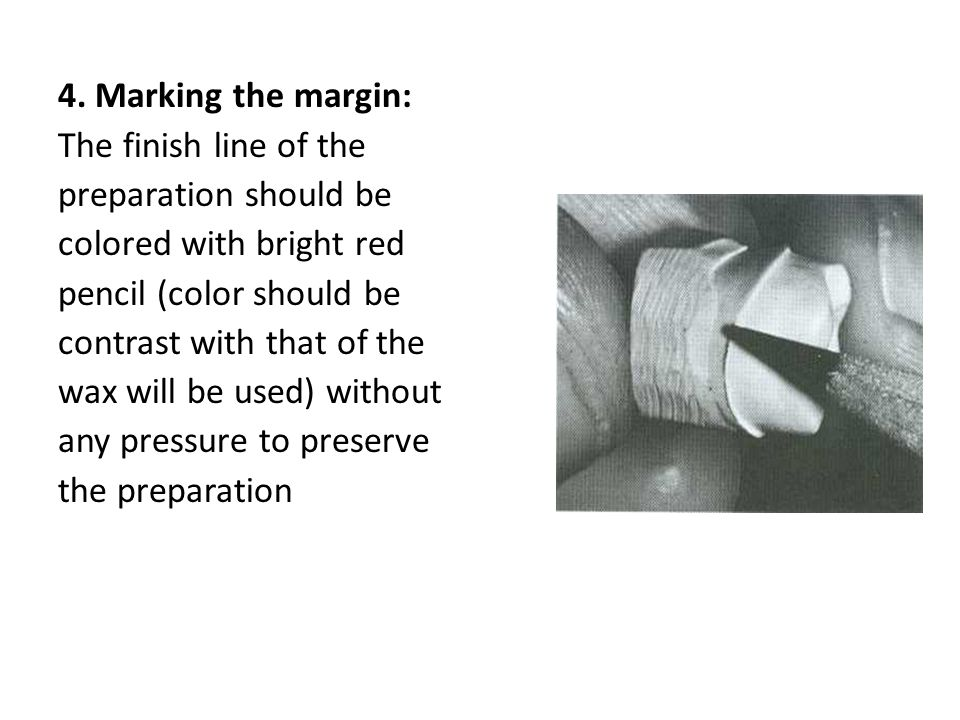 4. Marking the margin: The finish line of the. preparation should be. colored with bright red. pencil (color should be.