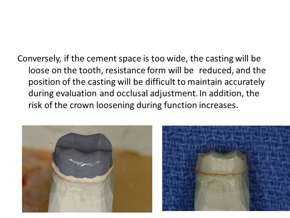 Conversely, if the cement space is too wide, the casting will be loose on the tooth, resistance form will be reduced, and the position of the casting will be difficult to maintain accurately during evaluation and occlusal adjustment.