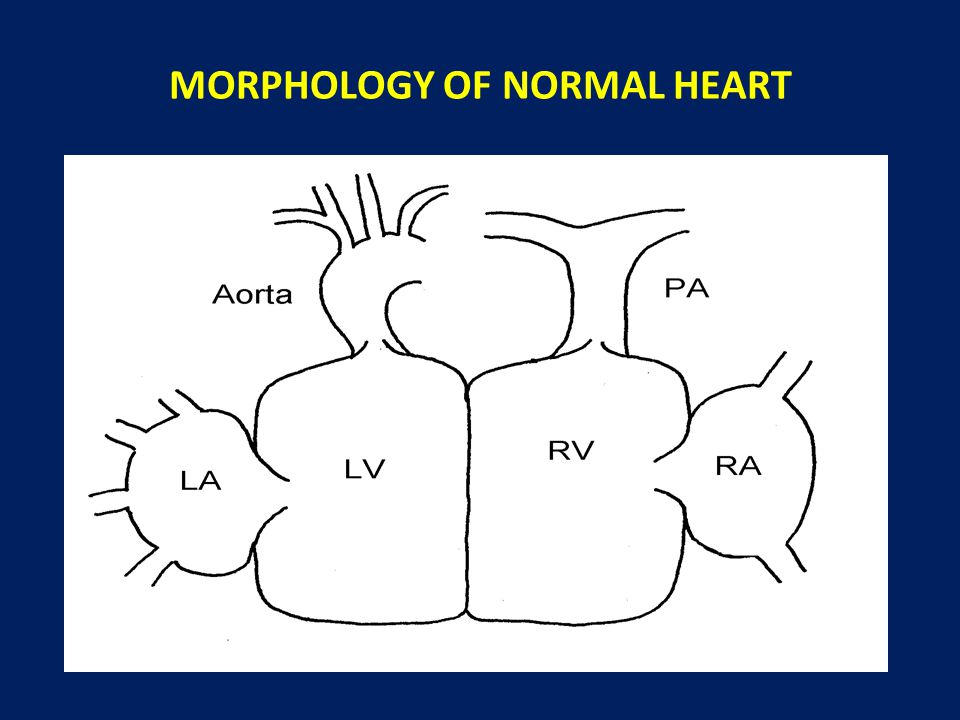 morphology of the heart The ecg criteria to diagnose ventricular tachycardia, or vt, is discussed including morphology criteria when the heart rate is less than 60 bpm.