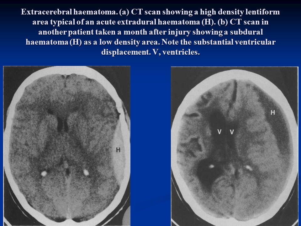 Extracerebral haematoma