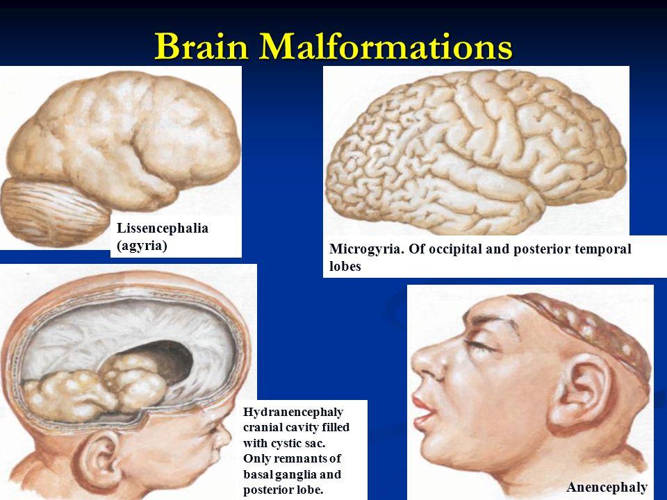 Brain Malformations Lissencephalia (agyria)