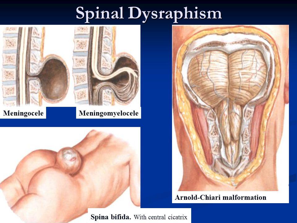 Spinal Dysraphism Meningocele Meningomyelocele