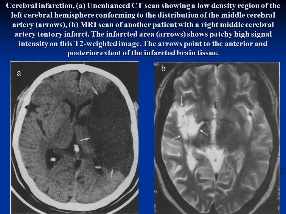 Cerebral infarction, (a) Unenhanced CT scan showing a low density region of the left cerebral hemisphere conforming to the distribution of the middle cerebral artery (arrows), (b) MRI scan of another patient with a right middle cerebral artery tentory infarct. The infarcted area (arrows) shows patchy high signal intensity on this T2-weighted image. The arrows point to the anterior and posterior extent of the infarcted brain tissue.