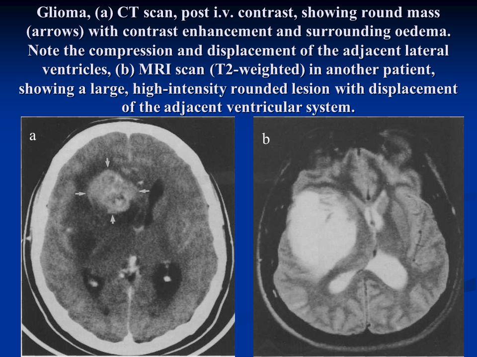 Glioma, (a) CT scan, post i. v