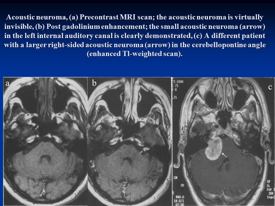 Acoustic neuroma, (a) Precontrast MRI scan; the acoustic neuroma is virtually invisible, (b) Post gadolinium enhancement; the small acoustic neuroma (arrow) in the left internal auditory canal is clearly demonstrated, (c) A different patient with a larger right-sided acoustic neuroma (arrow) in the cerebellopontine angle (enhanced Tl-weighted scan).