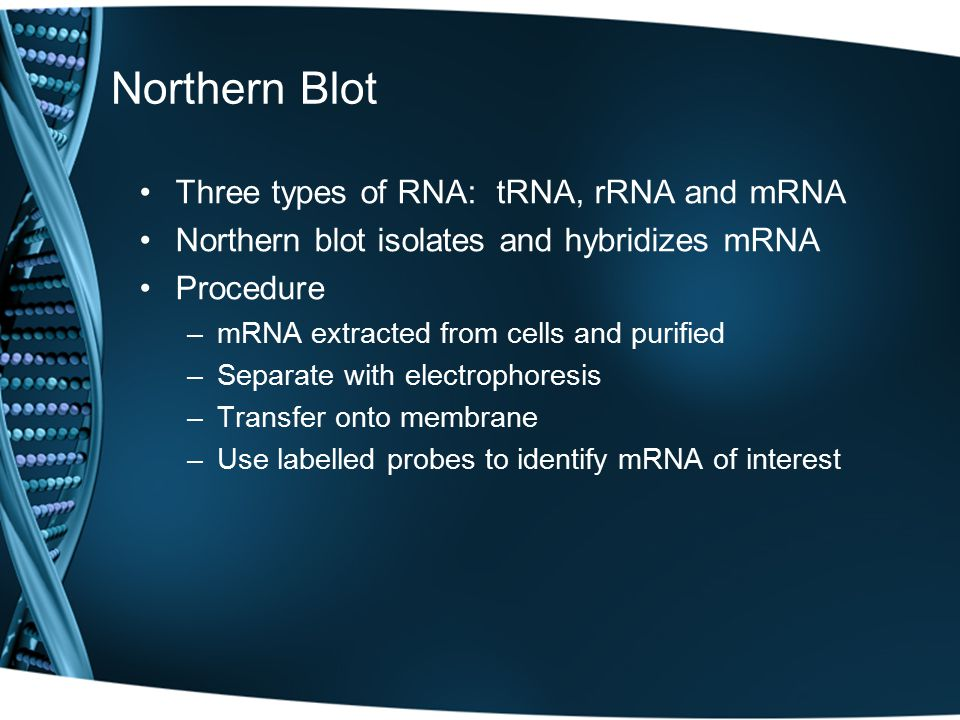 Northern Blot Three types of RNA: tRNA, rRNA and mRNA