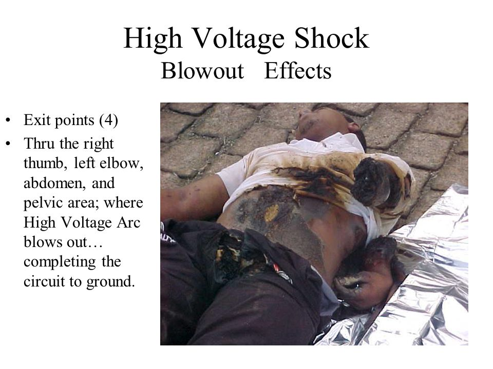High voltage shock arc ppt video online download high voltage shock blowout effects publicscrutiny Choice Image