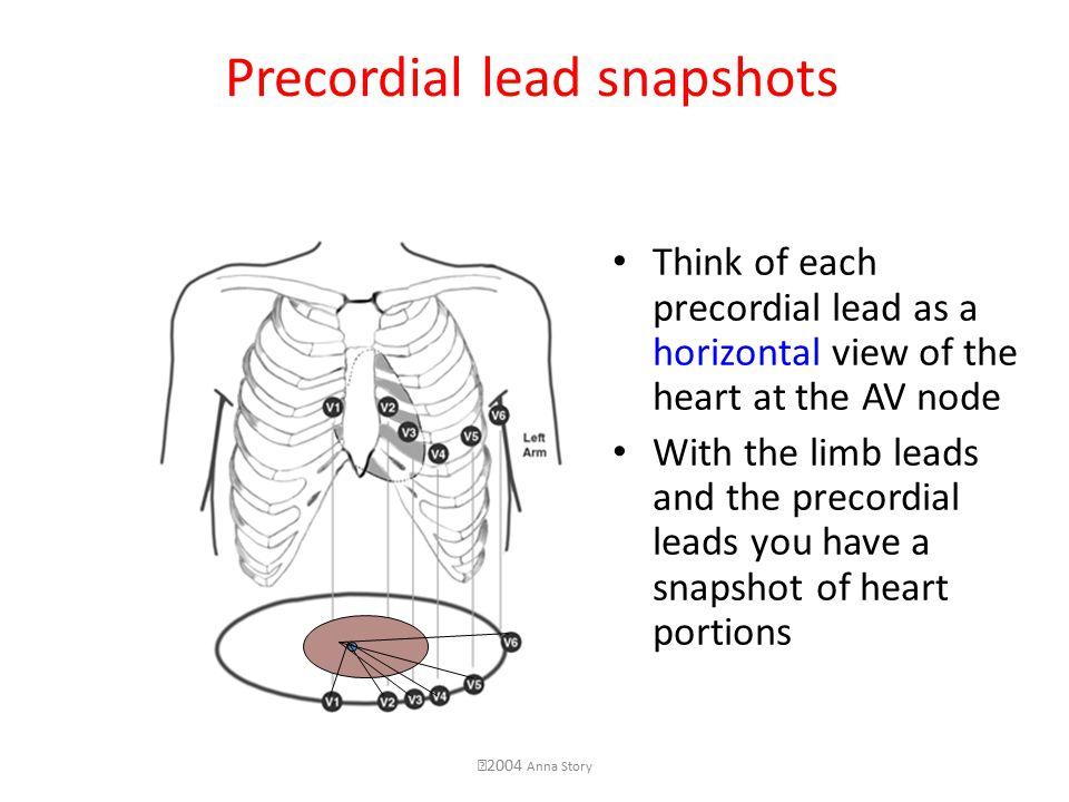 cardiovascular monitoring electrocardiogram