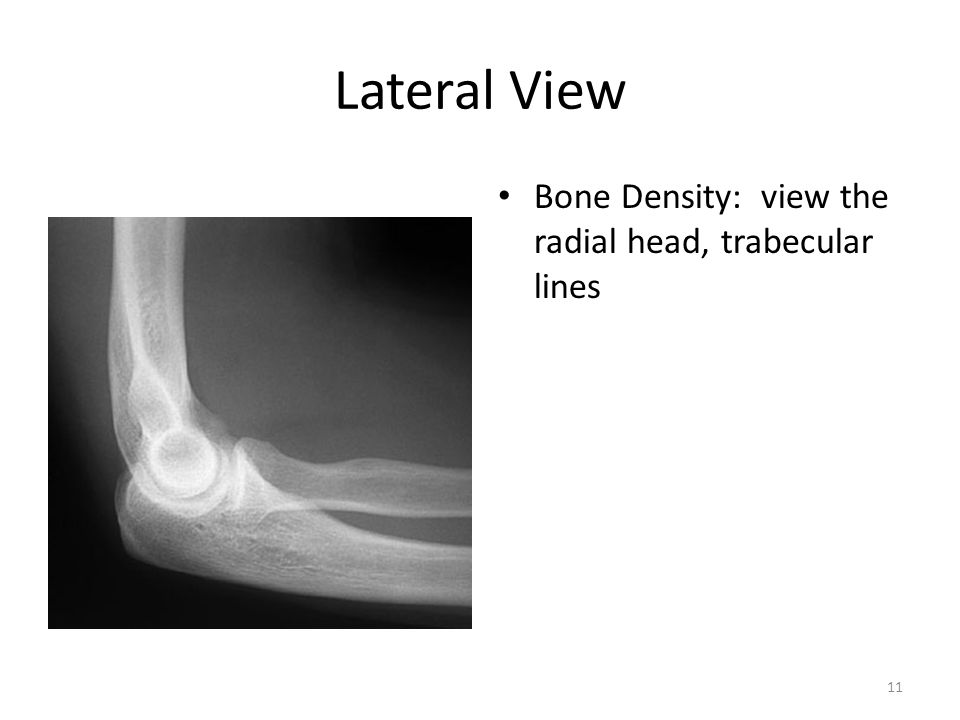 Lateral View Bone Density: view the radial head, trabecular lines