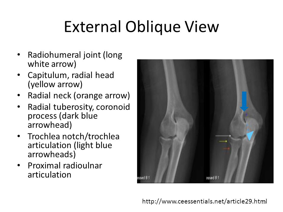 External Oblique View Radiohumeral joint (long white arrow)