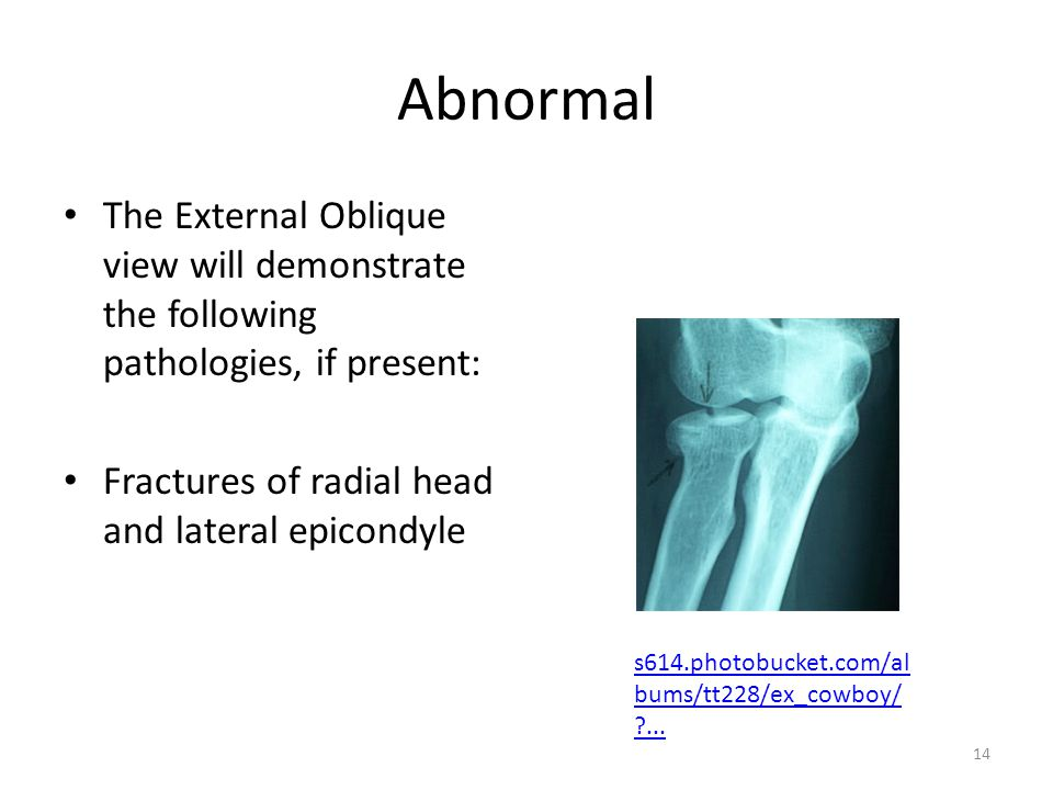 Abnormal The External Oblique view will demonstrate the following pathologies, if present: Fractures of radial head and lateral epicondyle.