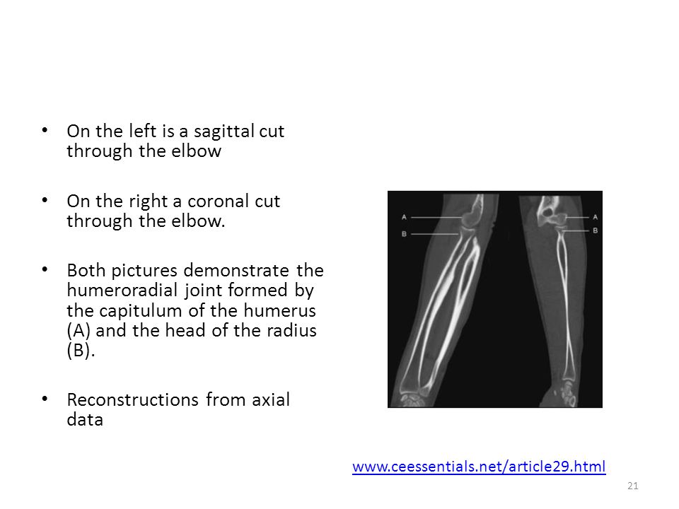On the left is a sagittal cut through the elbow
