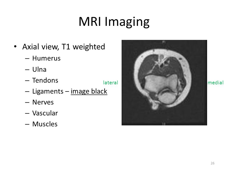 MRI Imaging Axial view, T1 weighted Humerus Ulna Tendons