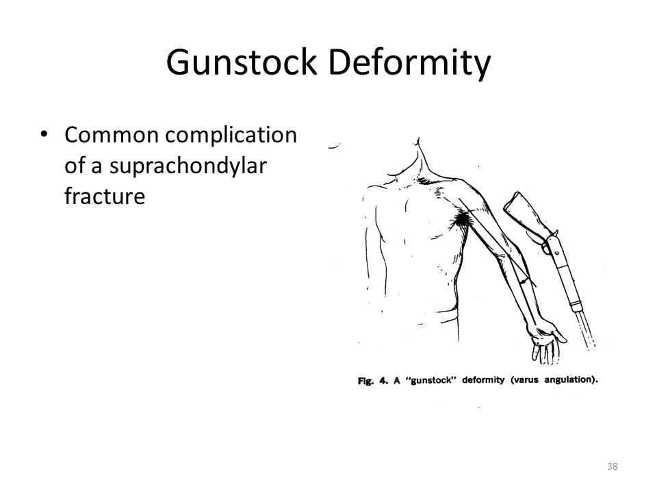 Gunstock Deformity Common complication of a suprachondylar fracture