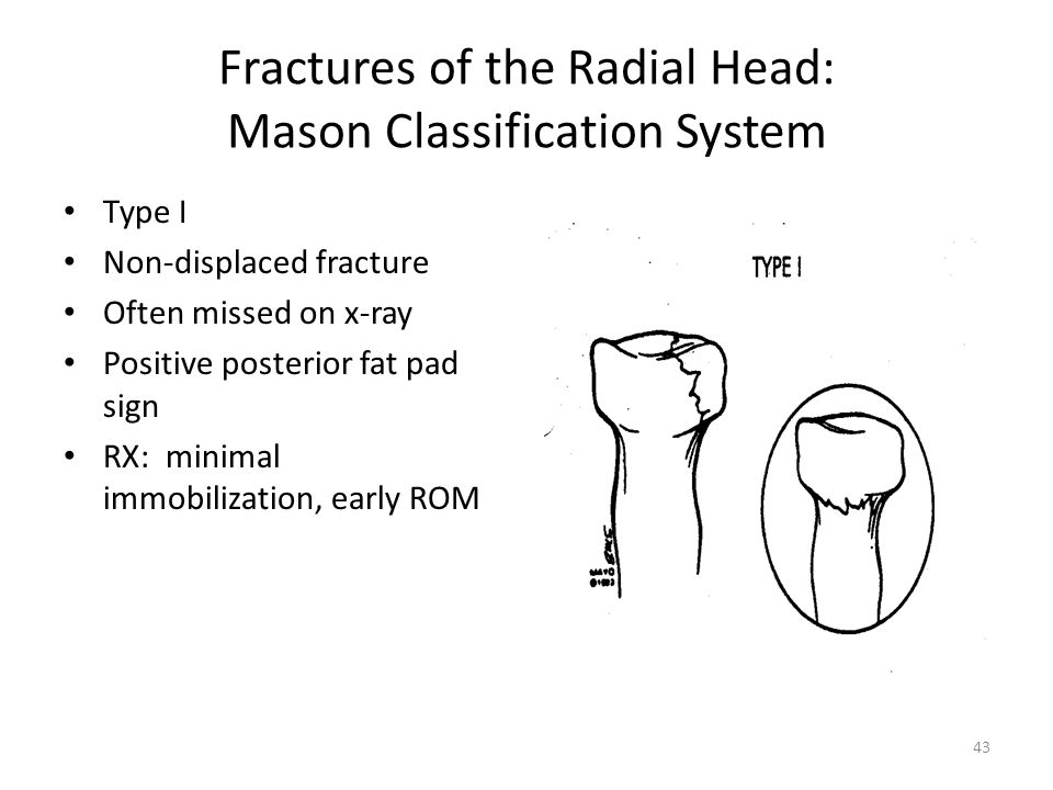 Fractures of the Radial Head: Mason Classification System