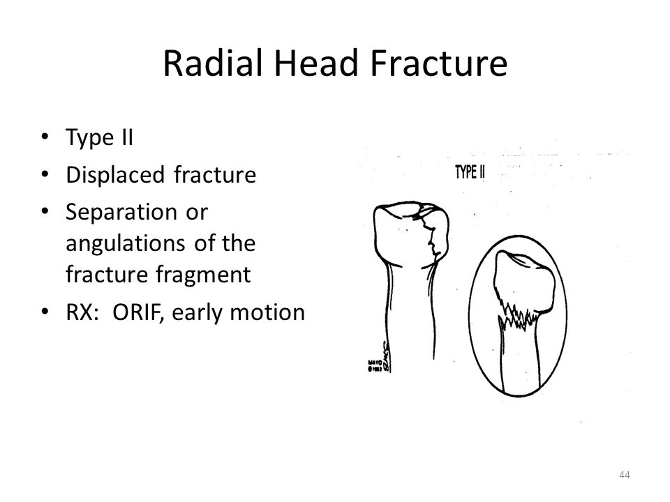 Radial Head Fracture Type II Displaced fracture
