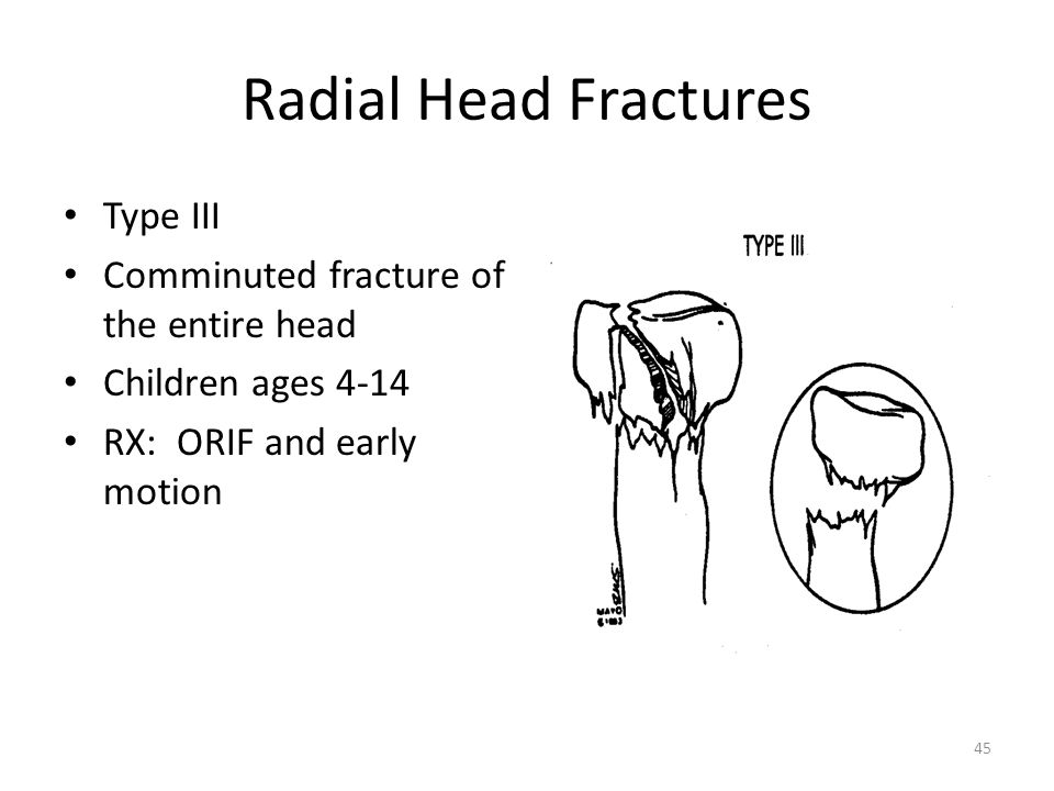 Radial Head Fractures Type III Comminuted fracture of the entire head