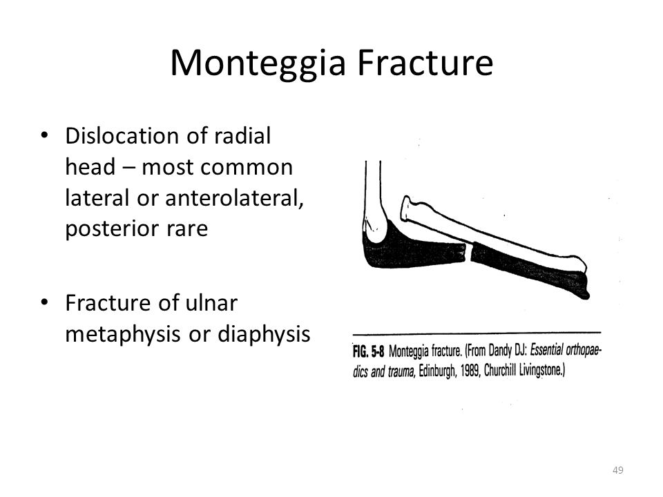 Monteggia Fracture Dislocation of radial head – most common lateral or anterolateral, posterior rare.
