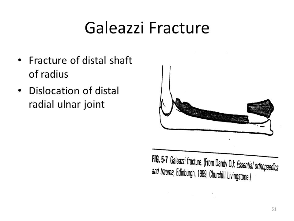 Galeazzi Fracture Fracture of distal shaft of radius