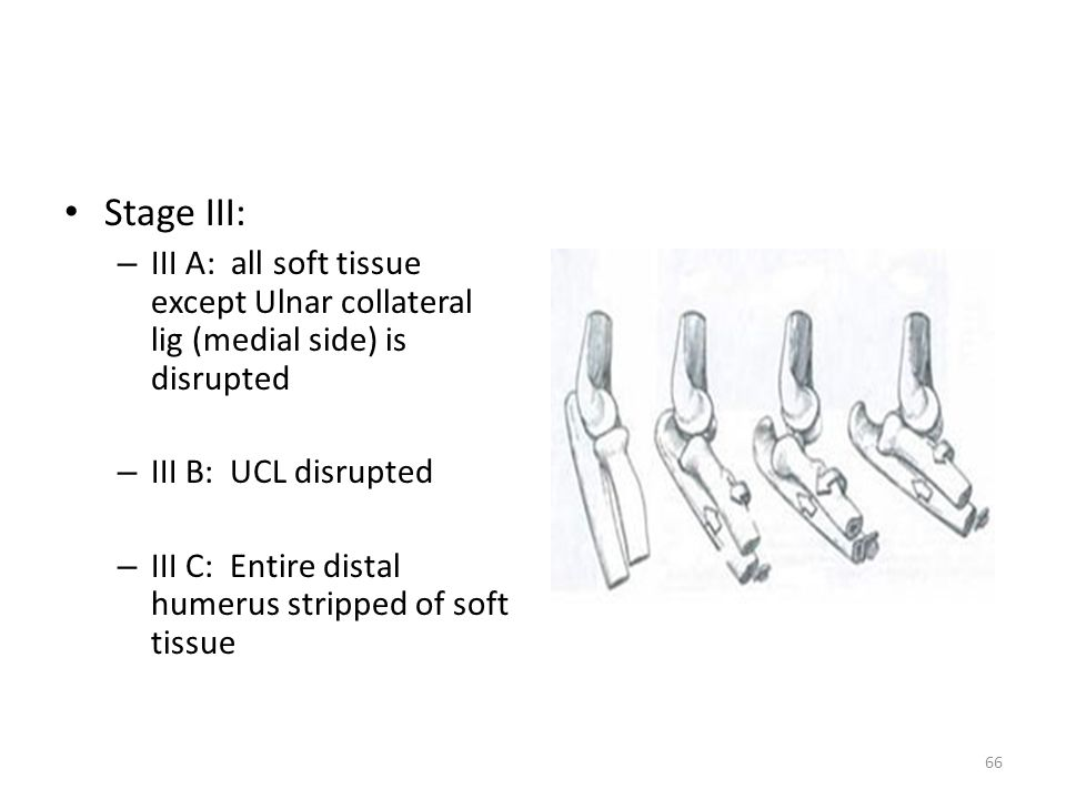 Stage III: III A: all soft tissue except Ulnar collateral lig (medial side) is disrupted. III B: UCL disrupted.