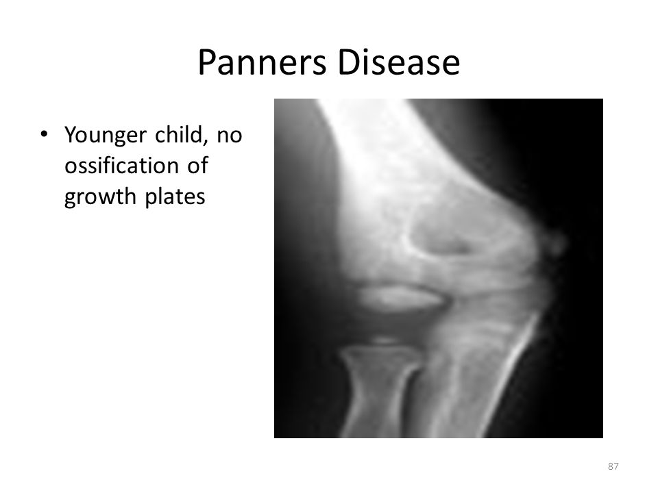 Panners Disease Younger child, no ossification of growth plates