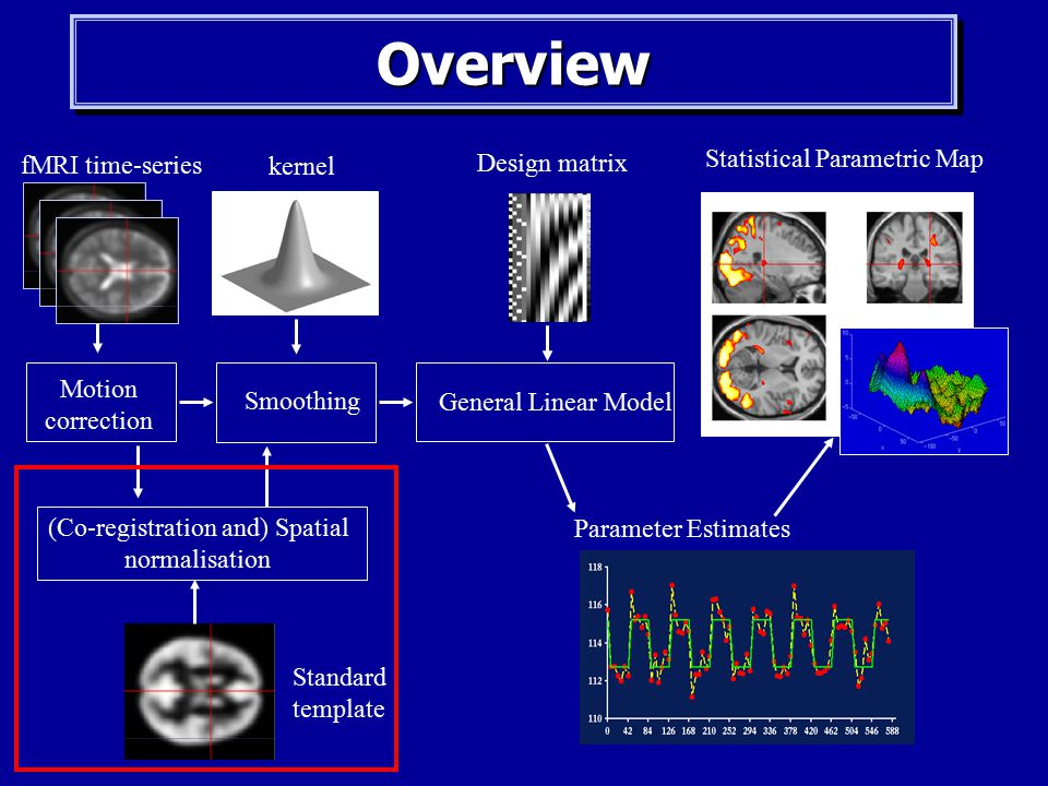 EEG-fMRI Co-Registration: From Research to a Potential Pre ...