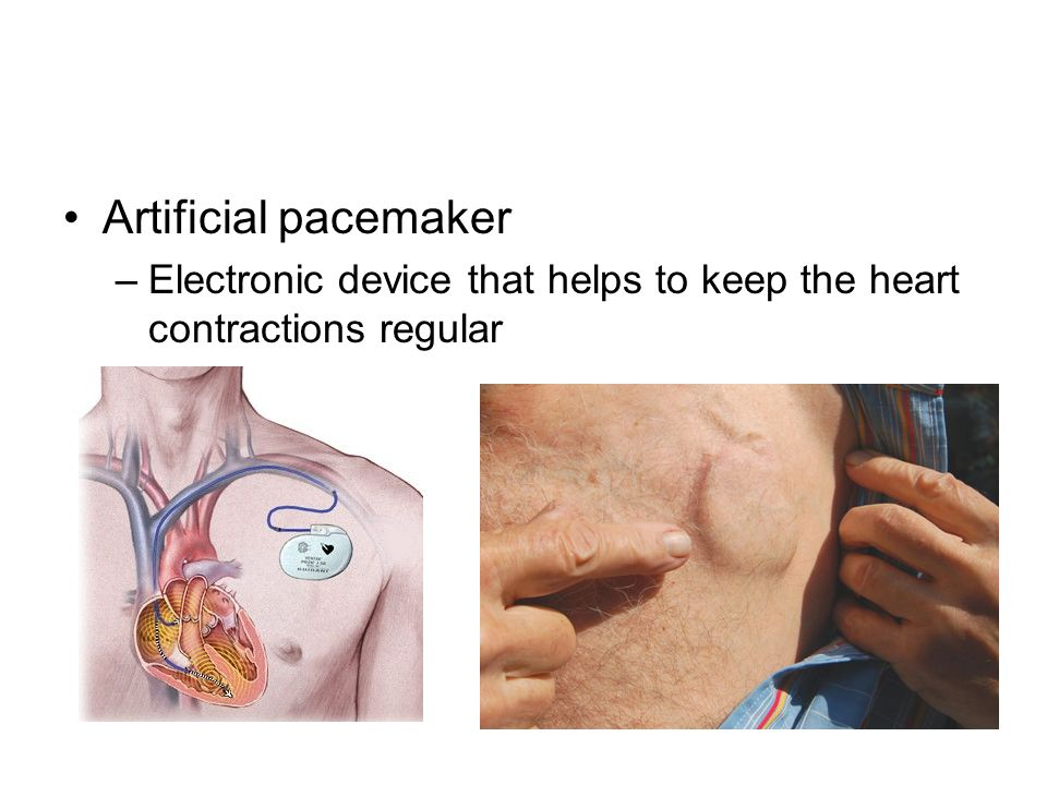 artificial pacemaker An artificial pacemaker is a small, battery-operated device that can be  permanently placed inside the chest or attached externally for temporary use.