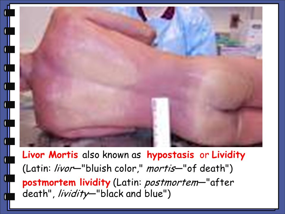 Livor Mortis also known as hypostasis or Lividity