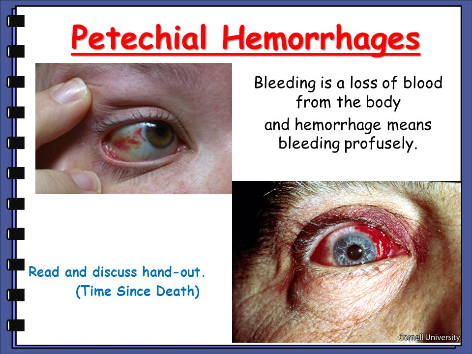 Petechial Hemorrhages