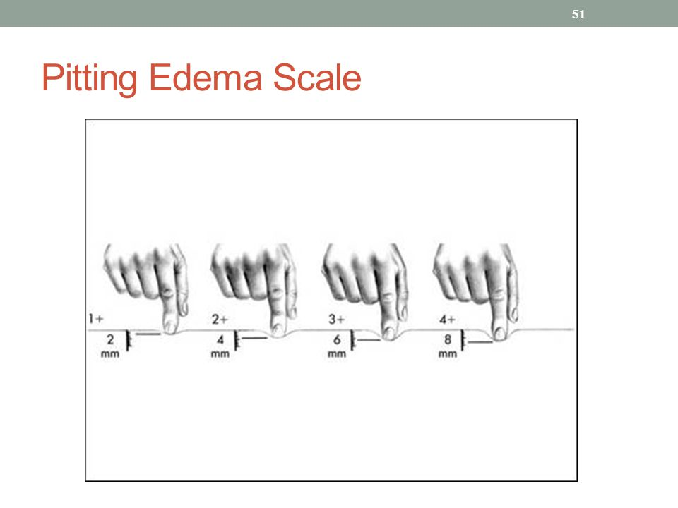 Edema Scoring Images - Reverse Search