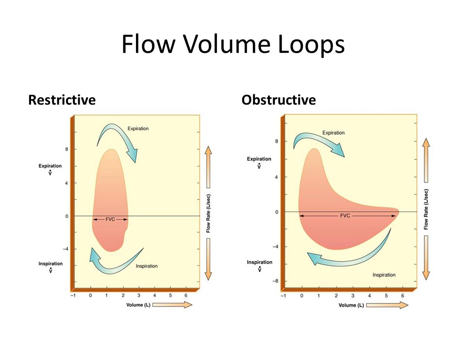 Flow Volume Loops Restrictive Obstructive