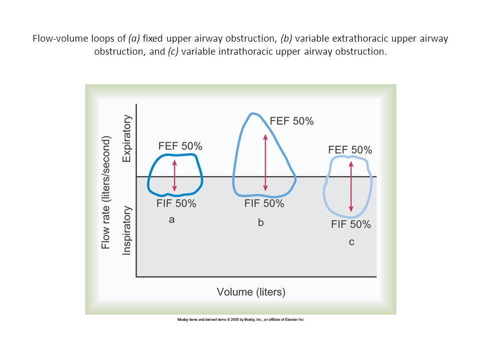 Flow-volume loops of (a) fixed upper airway obstruction, (b) variable extrathoracic upper airway obstruction, and (c) variable intrathoracic upper airway obstruction.