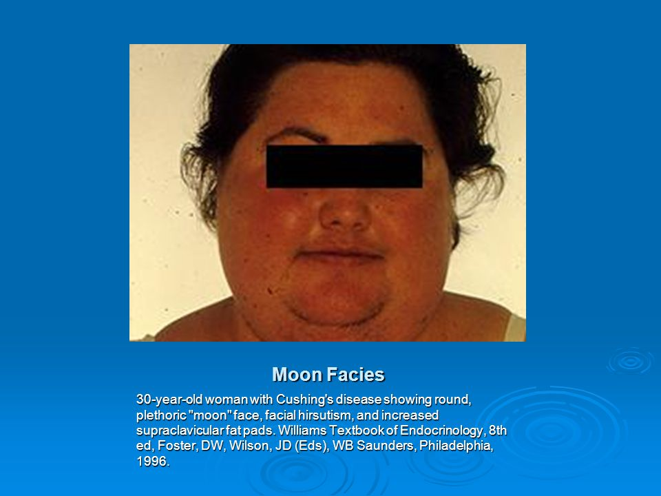 cushing syndrome caused by topical corticosteroid a case report