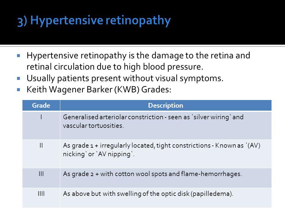 Retina 1 Clinical Anatomy And Retinal Micro Circulation 2  sc 1 st  Ewiring : hypertensive retinopathy silver wiring - yogabreezes.com