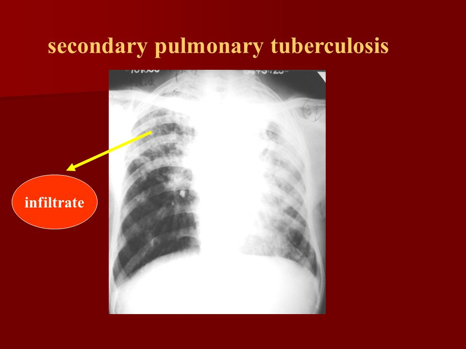 secondary pulmonary tuberculosis