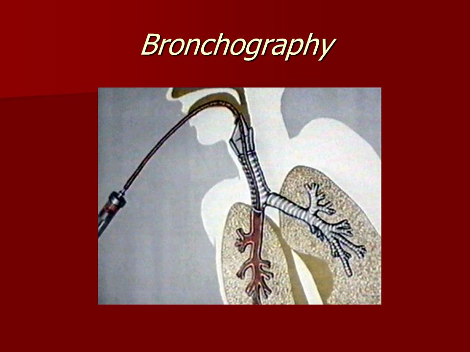 Bronchography