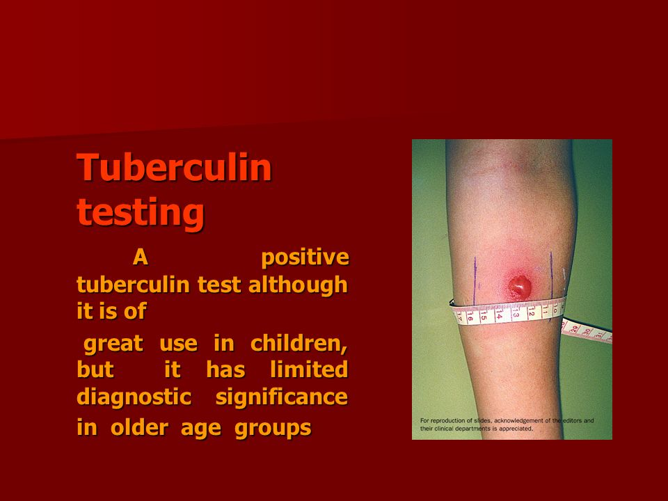 A positive tuberculin test although it is of