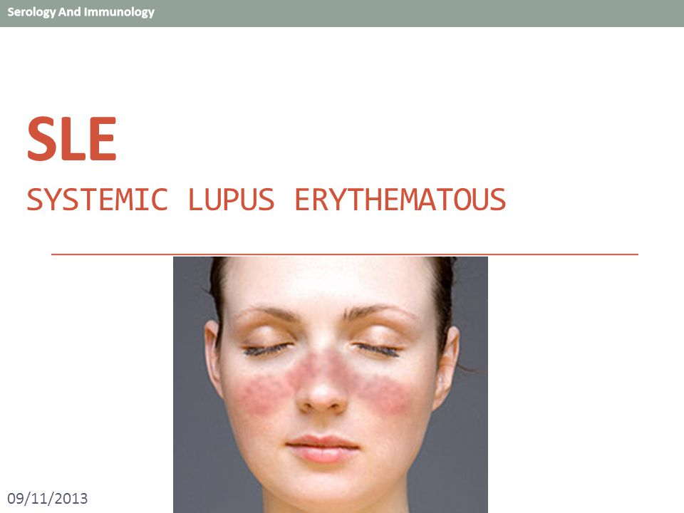 systematic lupus erythematous essay A client is suspected of having systemic lupus erythematous systematic lupus differential we will write a custom essay sample on any topic.