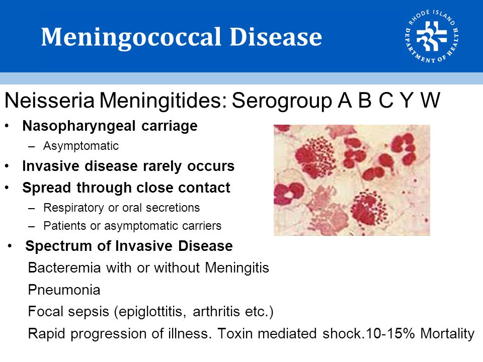 the meningococcal disease in the public health Invasive meningococcal disease is an acute and serious infection caused by the bacterium neisseria meningitidis it can cause sepsis (bloodstream infection), meningitis (inflammation of the tissues that cover the brain and spinal cord), and pneumonia information on this page has been organized into three categories.