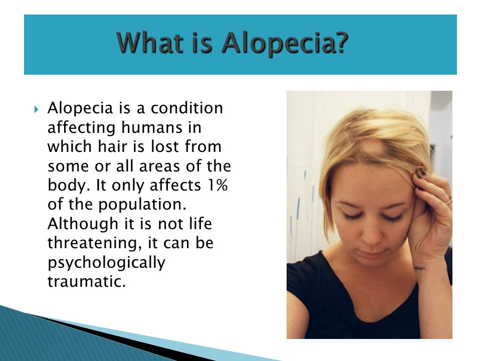 alalopecia areata is a condition that Alopecia areata alopecia is a general term for hair loss alopecia areata is a specific someone with alopecia areata is more likely than a person without it to develop other autoimmune conditions such as thyroid disease.