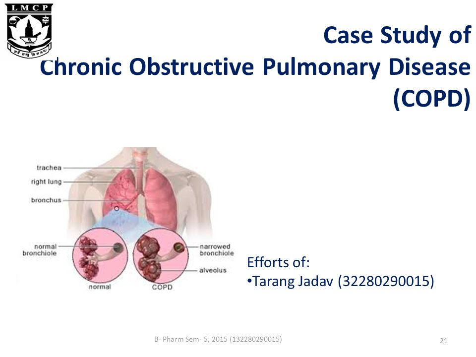 case study emphysema copd final Home » case studies samples » copd case study he was diagnosed to have chronic obstructive pulmonary disease (copd) chronic bronchitis and emphysema.