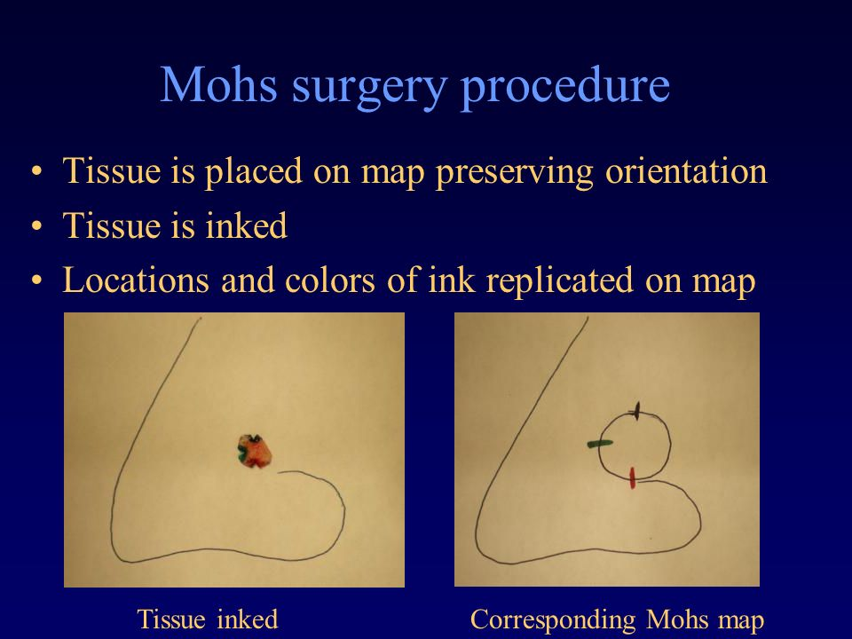 demand for mohs micrographic surgery in british columbia essay Cases of mohs micrographic surgery and advanced reconstructions dr bruce is only one of five dermatological surgeons to have completed this type of fellowship in the entire state of montana.