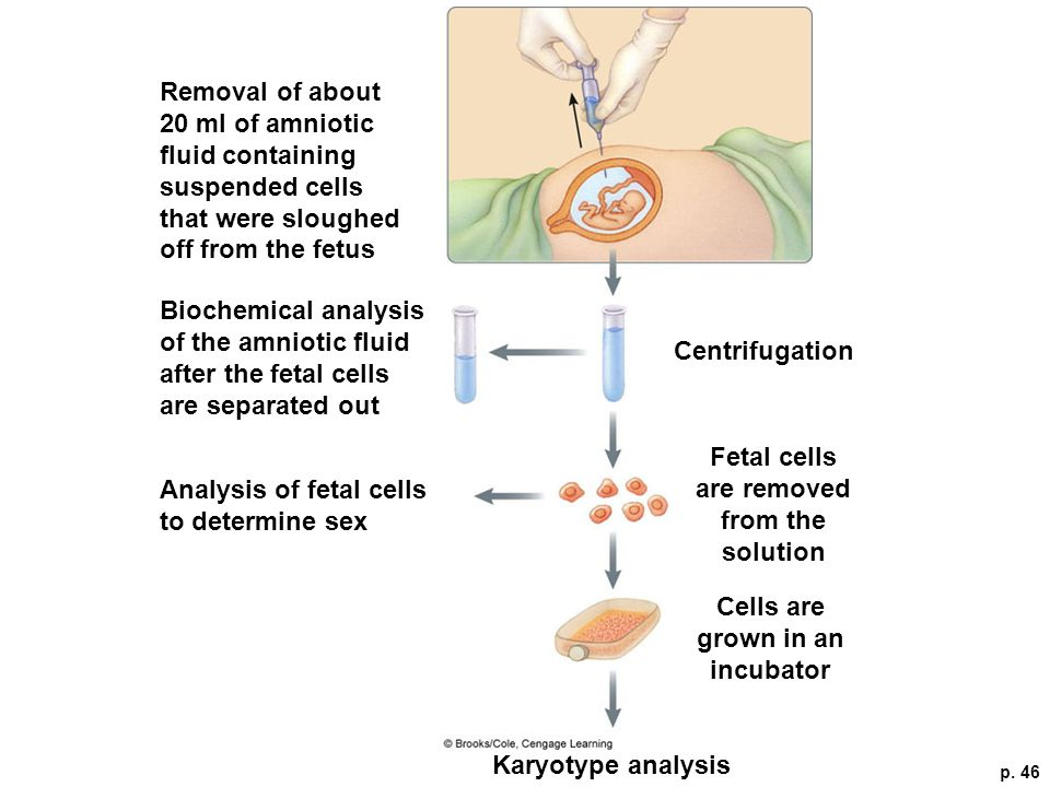 Fetal cells are removed from the solution