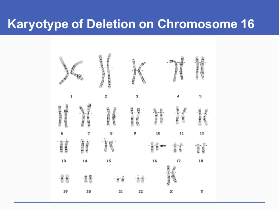 Karyotype of Deletion on Chromosome 16