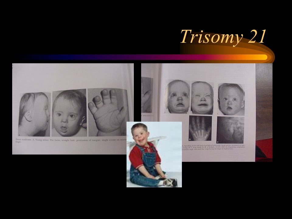 trisomy 21 research papers Down syndrome, which is also called trisomy 21, is rather a common chromosomal disorder the syndrome was first described by john langdon down in 1866 march 21, 2006 became the first world down syndrome day so, you are about to start writing a down syndrome research paper we suppose that you do.